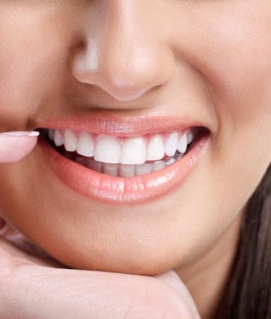 Teeth Whitening Montreal